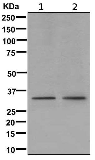 Western blot - Anti-Emerin antibody [EPR11069] (ab169770)