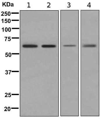 Western blot - Anti-TGFBI antibody [EPR12079(B)] (ab169771)