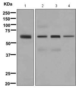 Western blot - Anti-TBX18 antibody [EPR10919] (ab169780)