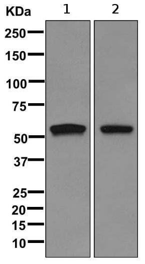 Western blot - Anti-Cytokeratin 2e antibody [EPR10911] (ab170106)