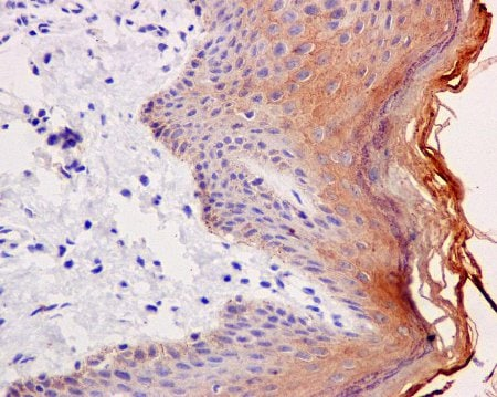 Immunohistochemistry (Formalin/PFA-fixed paraffin-embedded sections) - Anti-Cytokeratin 2e antibody [EPR10911] (ab170106)
