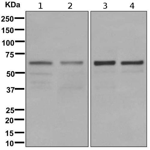 Western blot - Anti-DCTN4 antibody [EPR11223] (ab170107)