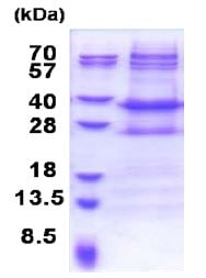 SDS-PAGE - NMNAT2 protein (His tag) (ab171475)