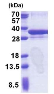 SDS-PAGE - ORC6L protein (His tag) (ab171477)
