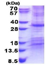 SDS-PAGE - CHCHD3 protein (His tag) (ab171478)