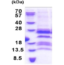 SDS-PAGE - GAGE12F protein (His tag) (ab171486)