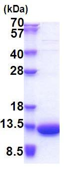 SDS-PAGE - LSM5 protein (His tag) (ab171489)