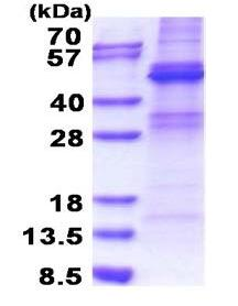 SDS-PAGE - ZNF514 protein (His tag) (ab171495)