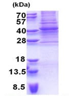 SDS-PAGE - PAX9 protein (His tag) (ab171496)