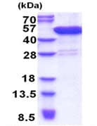 SDS-PAGE - CCDC104 protein (His tag) (ab171497)