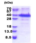 SDS-PAGE - ACBD6 protein (His tag) (ab171507)