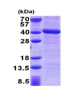 SDS-PAGE - PPP4C protein (His tag) (ab171584)