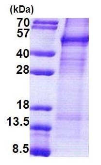 SDS-PAGE - Cyclin protein (His tag) (ab171592)