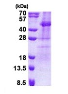 SDS-PAGE - TSSK2 protein (His tag) (ab171601)