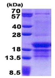 SDS-PAGE - PCBP1 protein (His tag) (ab171681)