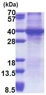 SDS-PAGE - Sprouty 4 protein (His tag) (ab171684)
