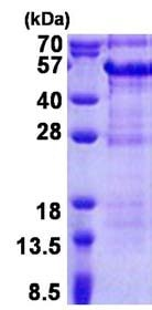 SDS-PAGE - DBR1 protein (His tag) (ab171685)