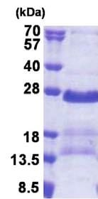 SDS-PAGE - GAGE2A protein (His tag) (ab171690)