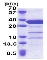 SDS-PAGE - Syntaxin 6 protein (His tag) (ab171693)