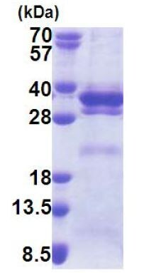 SDS-PAGE - LRRC59 protein (His tag) (ab171695)