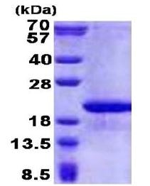 SDS-PAGE - FAM107B protein (His tag) (ab171700)