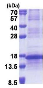 SDS-PAGE - RPL35A protein (His tag) (ab171702)