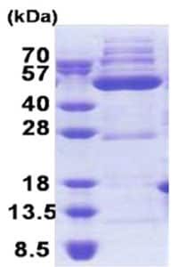 SDS-PAGE - OXSM protein (His tag) (ab171708)