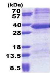 SDS-PAGE - PPP1R3B protein (His tag) (ab171709)