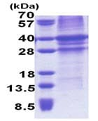 SDS-PAGE - TFPI protein (His tag) (ab171716)