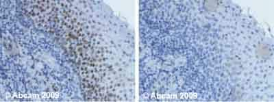 Immunohistochemistry (Formalin/PFA-fixed paraffin-embedded sections) - Ctip1 antibody [18B12DE6] (ab19489)