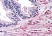 Immunohistochemistry (Formalin/PFA-fixed paraffin-embedded sections) - Anti-ELMO2 antibody (ab2240)