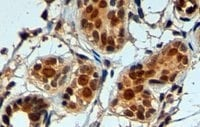 Immunohistochemistry (Formalin/PFA-fixed paraffin-embedded sections) - Anti-APE1 antibody (ab2717)