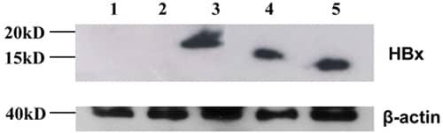 Western blot - Anti-Hepatitis B Virus X antigen antibody [X36C] (ab2741)