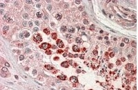 Western blot - Anti-XAGE1 antibody (ab27477)