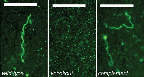 Immunocytochemistry/ Immunofluorescence - Anti-Plasminogen antibody (FITC) (ab27617)