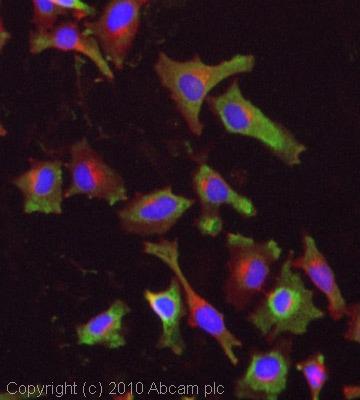 Immunocytochemistry/ Immunofluorescence - Anti-M6PR (cation independent) antibody (ab32815)