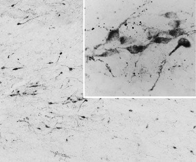 Immunohistochemistry (PFA perfusion fixed frozen sections) - Anti-AGRP antibody (ab32882)