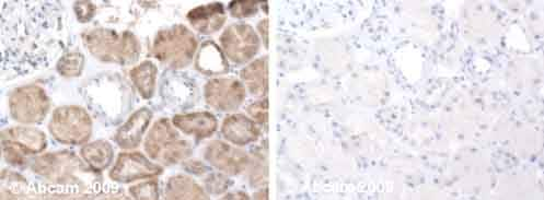 Immunohistochemistry (Formalin/PFA-fixed paraffin-embedded sections) - Anti-Bcl-XL antibody (ab45002)