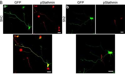 Immunocytochemistry/ Immunofluorescence - Anti-Stathmin 1 (phospho S16) antibody (ab47328)