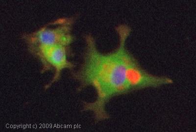 Immunocytochemistry/ Immunofluorescence - Anti-CaMKII antibody [EP1829Y] (ab52476)