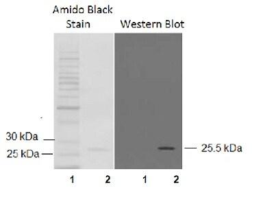 Western blot - Anti-Glutathione S Transferase mu antibody (ab53942)