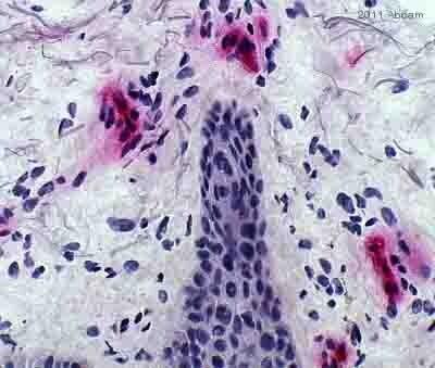 Immunohistochemistry (Formalin/PFA-fixed paraffin-embedded sections) - Anti-Fc epsilon RI antibody [9E1] (ab54411)