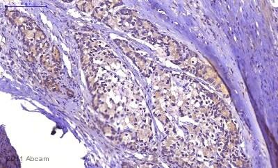 Immunohistochemistry (Formalin/PFA-fixed paraffin-embedded sections) - Anti-KRAS+HRAS+NRAS antibody (ab55391)