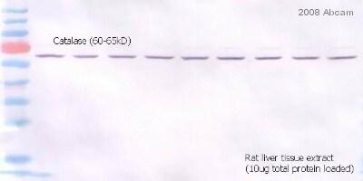 Western blot - Goat polyclonal Secondary Antibody to Rabbit IgG - H&L (AP) (ab6722)
