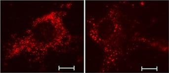Immunocytochemistry/ Immunofluorescence - Rabbit anti-Rat IgG H&L (TR) secondary antibody (ab6732)