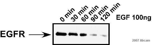 Western blot - Donkey polyclonal Secondary Antibody to Sheep IgG - H&L (HRP) (ab6900)