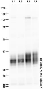 Western blot - Anti-Mast Cell Tryptase antibody (ab64192)