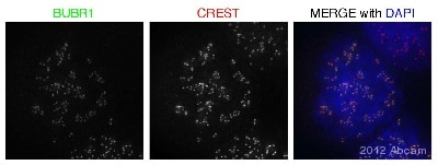 Immunocytochemistry/ Immunofluorescence - Anti-BubR1 antibody (ab70544)