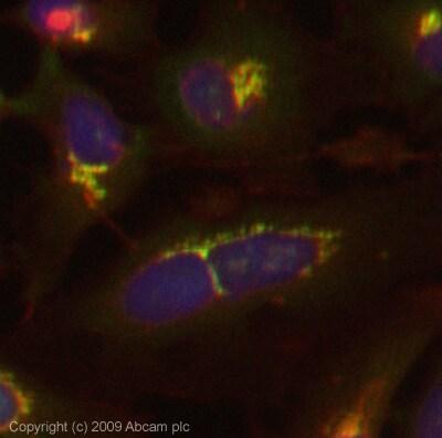 Immunocytochemistry/ Immunofluorescence - E Cadherin antibody (ab77287)