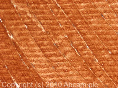 Immunohistochemistry (Formalin/PFA-fixed paraffin-embedded sections) - SERCA2 ATPase antibody (ab77289)